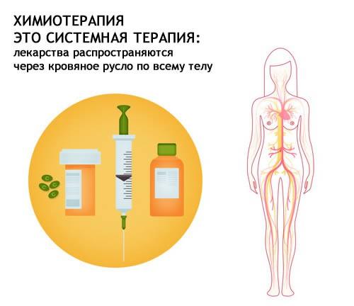 Как пережить химиотерапию