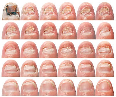 Грибок ногтей: симптомы и лечение