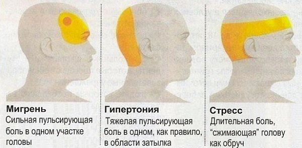 Виды головных болей и их лечение